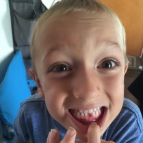 Judah's 1st lost tooth